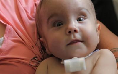 Доктори со 3Д печатач го спасиле животот на 3-месечно бебе