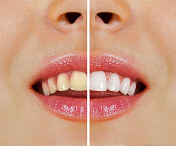 Евтин и ефикасен избелувач на вашите заби во домашни услови