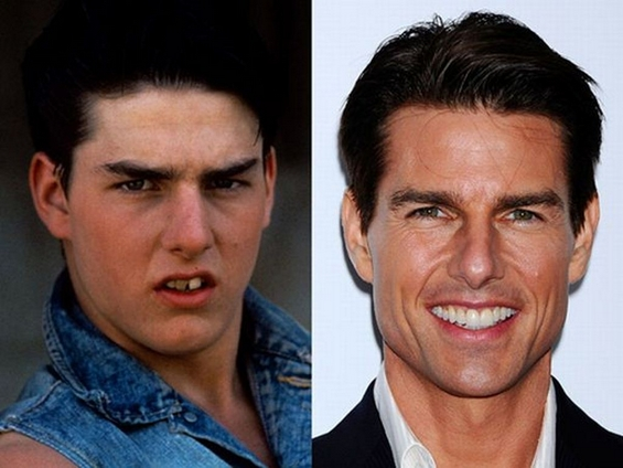 Како изгледале забите на познатите пред посетата на скап стоматолог?