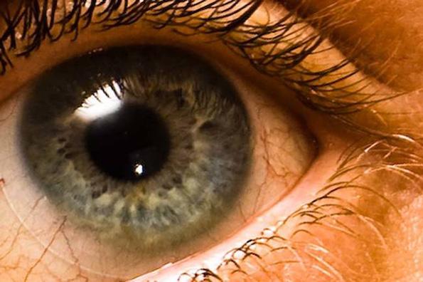 Оваа девојка не ги извадила своите контактни леќи 6 месеци и нешто застрашувачко се случило со нејзините очи