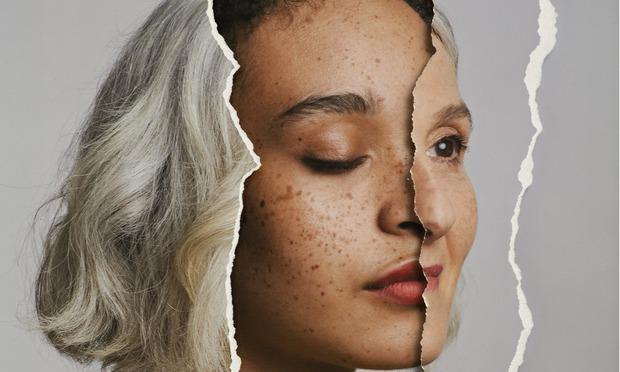 Рани знаци на Алцхајмерова болест се забележуваат и во 20-тата година