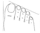 (1) Обликот на прстите на нозете може да ви каже многу за вашиот карактер