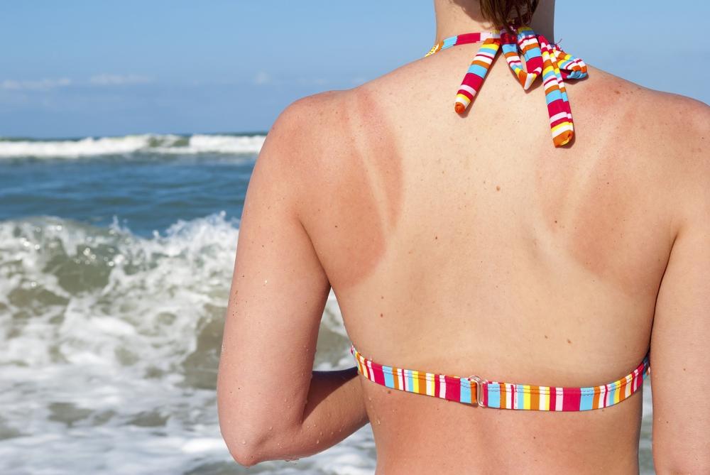 3 начини да се справите со изгорениците од сонце