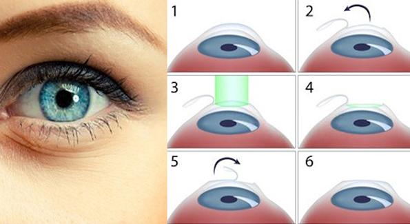 4-100-bezbedno-i-bezbolno-lasersko-otstranuvanje-na-dioptrija-vo-sistina-oftalmologija-po-promotivna-cena-do-1-septemvri-kafepauza.mk