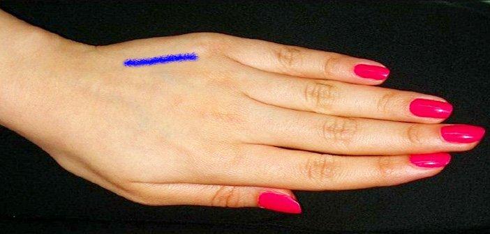 Масирајте ја вашата Гамут точка на раката и ослободете се од штетните навики