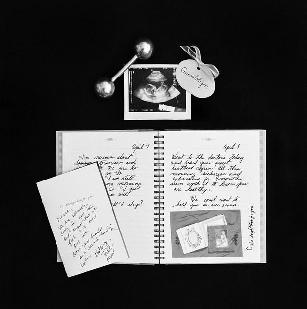 (5) Трогателна серија фотографии го портретира скршеното срце зад спонтаниот абортус