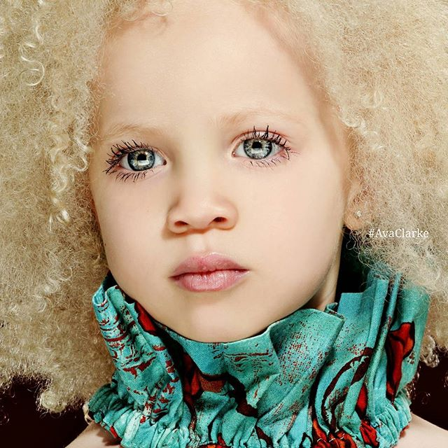(1) Запознајте ја Ава Кларк, прекрасната мала албино црнкиња