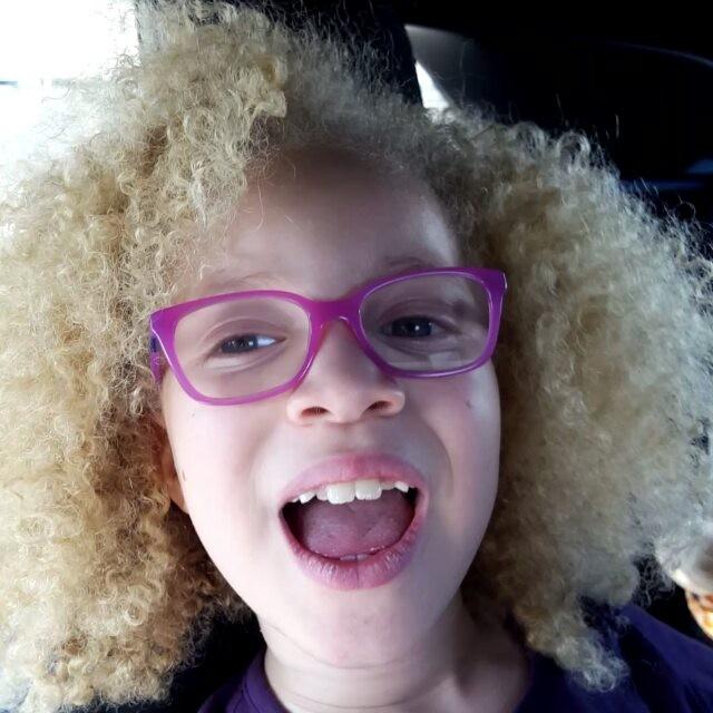 (16) Запознајте ја Ава Кларк, прекрасната мала албино црнкиња