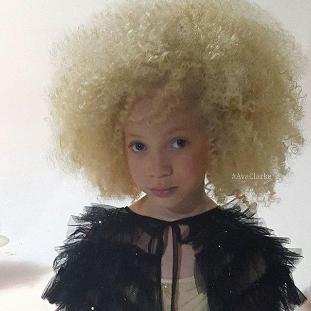 (25) Запознајте ја Ава Кларк, прекрасната мала албино црнкиња