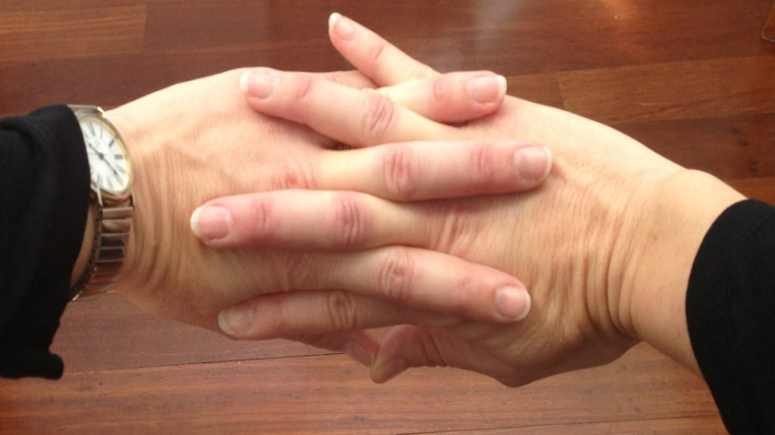 """(1) Што се случува кога ги """"крцкате"""" прстите на рацете? Може да биде опасно"""