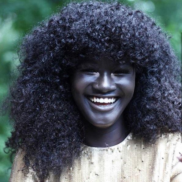 Оваа девојка била задевана на училиште поради бојата на нејзината кожа, но денес таа е модел