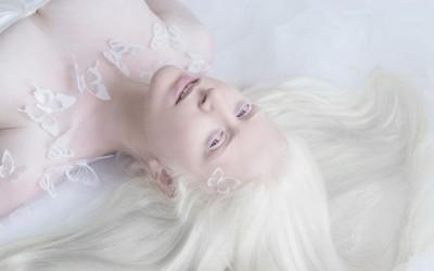 Волшебната убавина на албино луѓето прикажана преку прекрасни фотографии