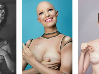 Проект со инспиративна цел: Зошто луѓето кои го победиле ракот не се жртви?