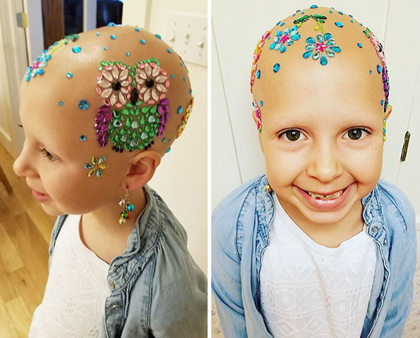 """7-годишно девојче со алопеција блесна на училиште со нејзината луда """"фризура"""" и покрај сериозната болест"""