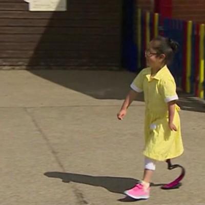 Реакцијата на овие дечиња кога ќе ја видат нивната другарка со нова простетичка нога ќе ви го стопи срцето!
