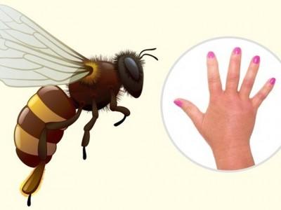 Како да ги препознаете најчестите убоди од инсекти?