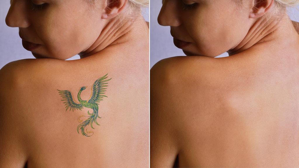 1-doznajte-go-tochniot-odgovor-dali-otstranuvanjeto-na-tetovazhite-boli-www.kafepauza.mk_