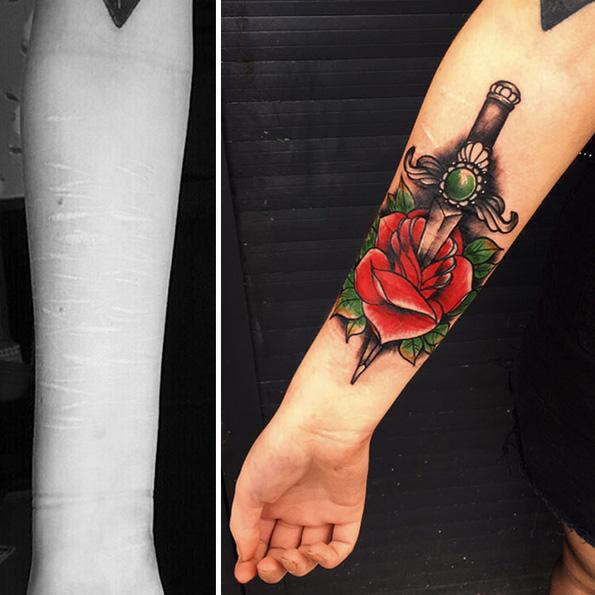 Девојка сакала да ги покрие лузните од самоповредување со тетоважи, но сите ја одбиле освен еден тату артист