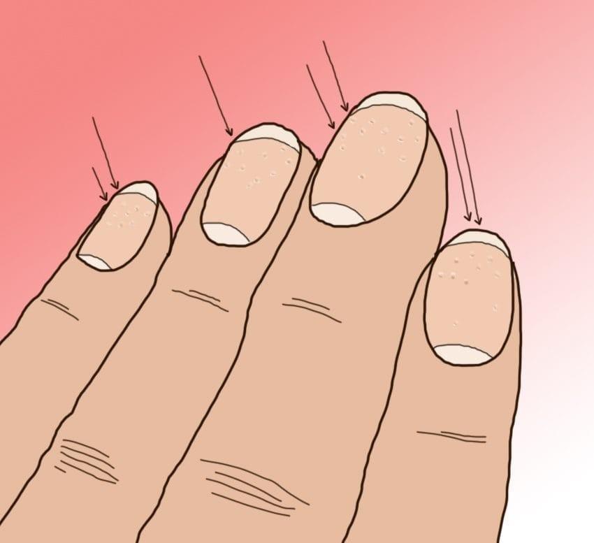 10 тајни кои ги кријат ноктите за вашето здравје