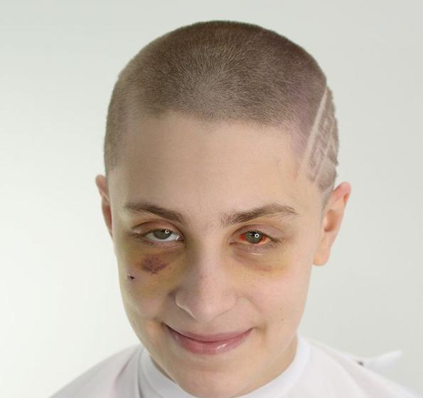 Фризер објавил фотографии од жртва на домашно насилство за да ја подигне свеста на народот