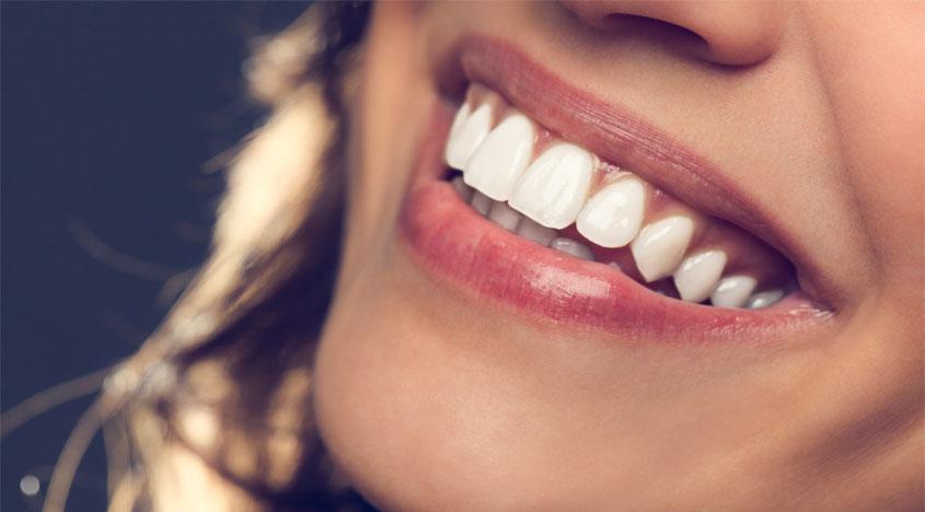 6 причини за пожолтување на забите