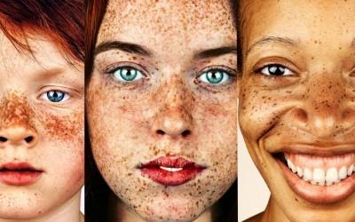 Фотограф прави неверојатни портрети од луѓе со пеги