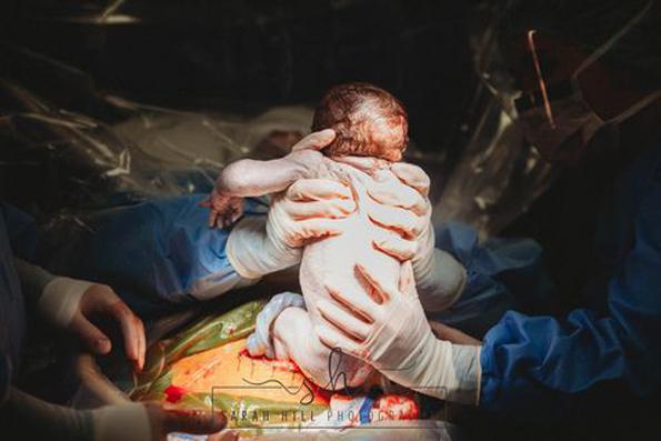 Неверојатни фотографии: Оваа жена активно учествувала во нејзиното породување со царски рез