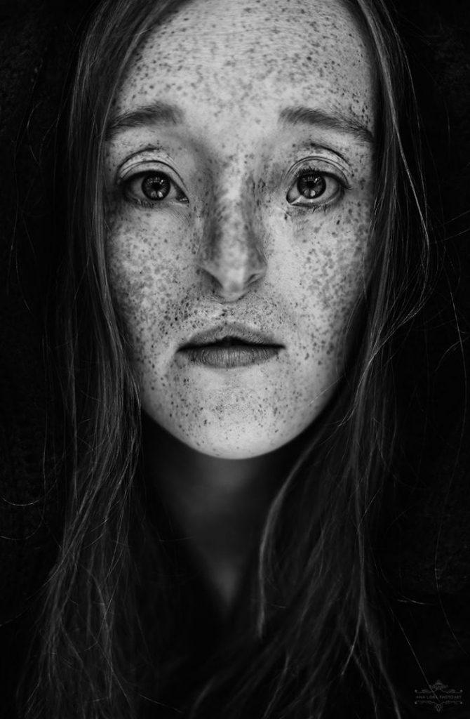 26-годишна жена ги руши стандардите за убавина со нејзиниот необичен изглед
