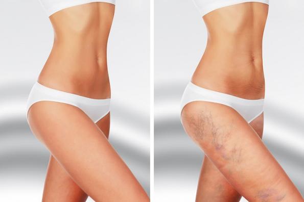 Имате необјасниви модринки на вашето тело? Еве кои здравствени проблеми можат да бидат причина за тоа