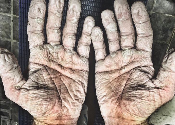 14 фотографии коишто ја покажуваа јачината на човечкиот дух