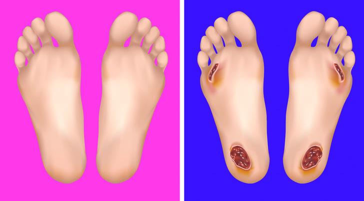 Проблеми со здравјето што можете да ги откриете од вашите стапала