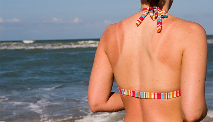 Како брзо да се ослободите од линиите од сончање?