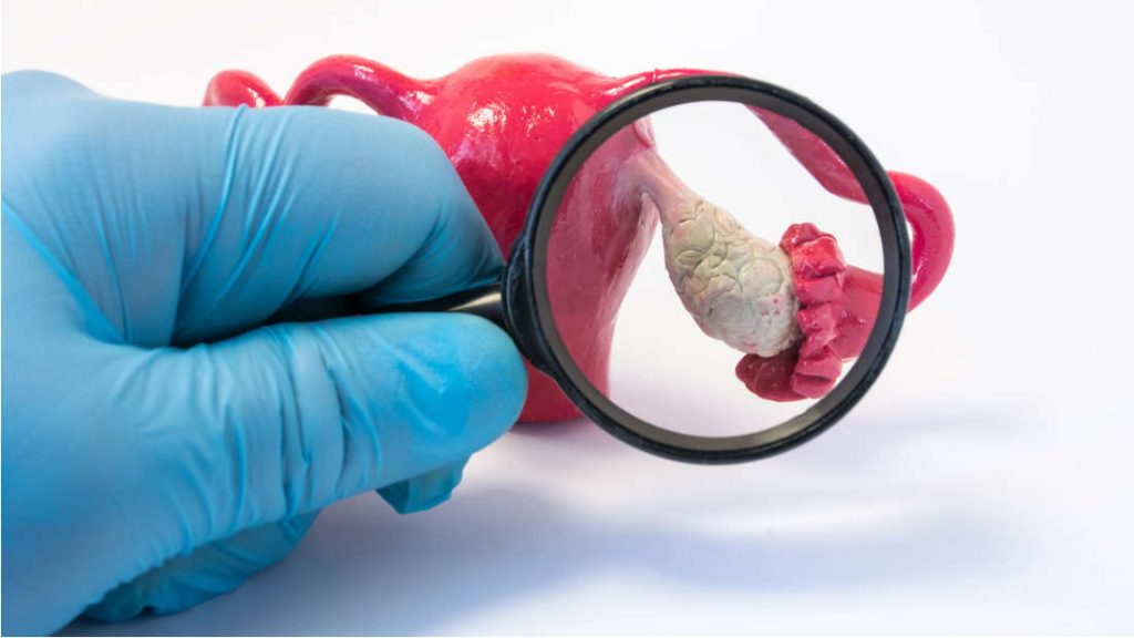 Нов вештачки јајник можеби е решението за неплодност по рак