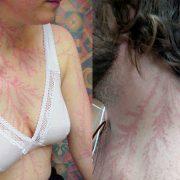 Луѓе што преживеале удар од молња покажуваат што тоа ѝ прави на вашата кожа