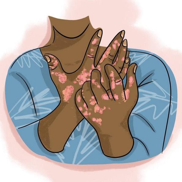 6 знаци дека сте алергични на сонце