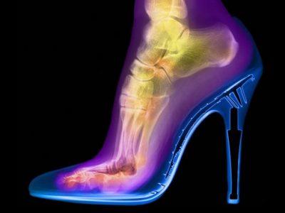 12 неверојатни нешта што можете да ги видите само со помош на рендген