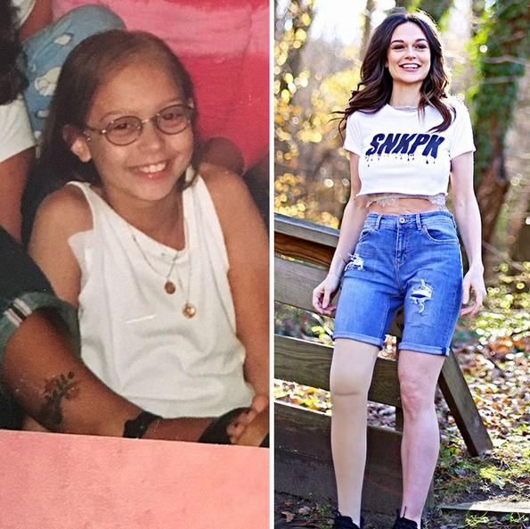 Девојче со ампутирана нога станува модел 20 години подоцна