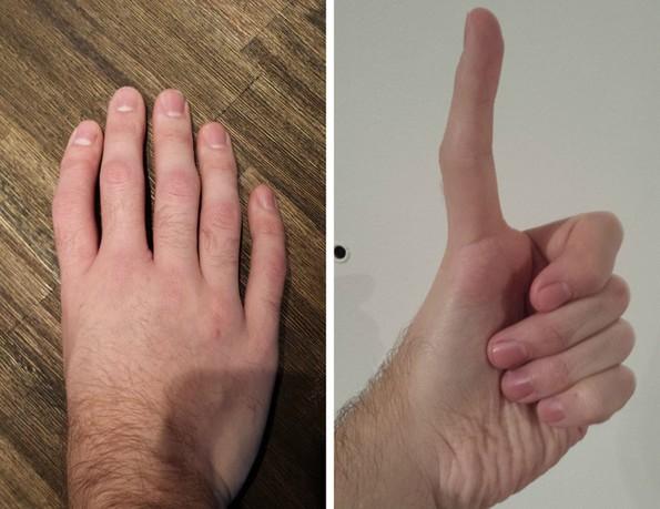 Луѓе споделуваат фотографии од нивните необични делови на телото