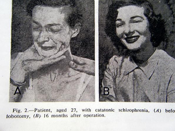 Морничави пред и потоа фотографии од луѓе на кои им била направена лоботомија
