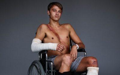 10 луѓе позираат со нивите повреди за да ја зголемат свесноста за безбедносниот појас