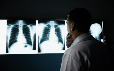 Симптоми на рак на белите дробови на кои треба да внимавате дури и ако не сте пушач