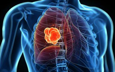Експертите предупредуваат: Загадувањето поврзано со илјадници случаи на рак на белите дробови
