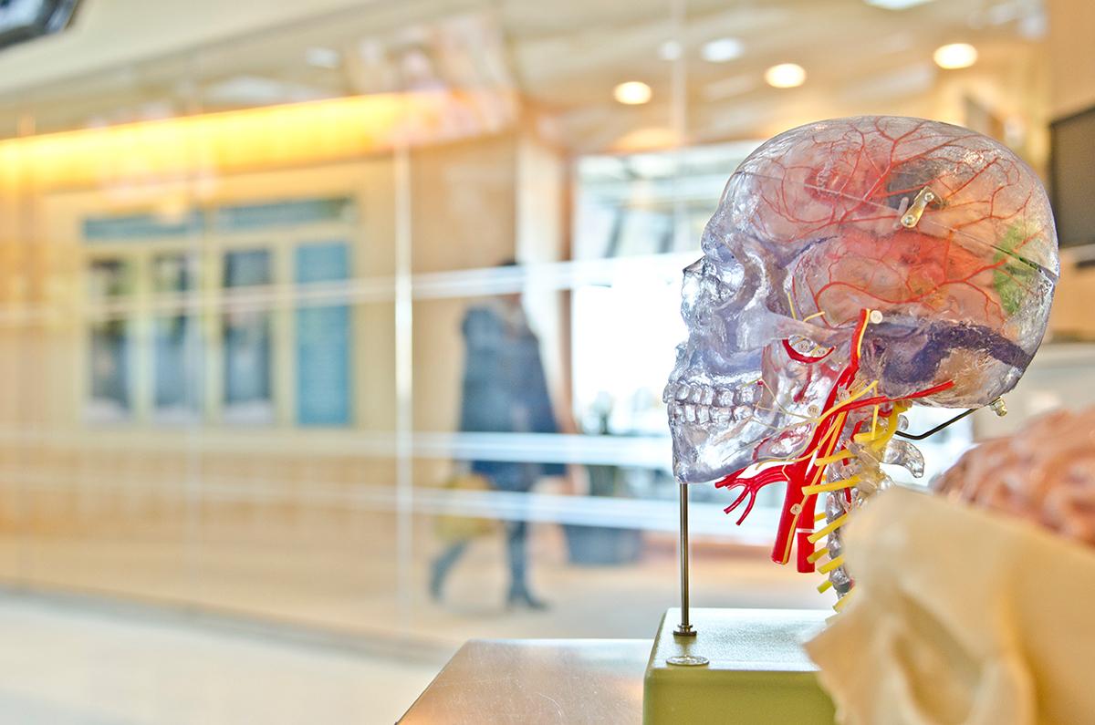8 лоши навики и ситуации што го зголемуваат ризикот од мозочен удар