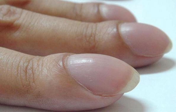Спојте ги прстите на овој начин и за неколку секунди дознајте дали ви се заканува рак на белите дробови: Овој едноставен тест може да ви го спаси животот