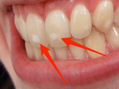 Бели дамки на забите, зошто некои луѓе ги имаат, а други не?