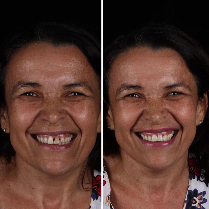 Стоматолог од Бразил патува низ светот и им ги поправа забите на луѓето кои не можат да си го дозволат тоа