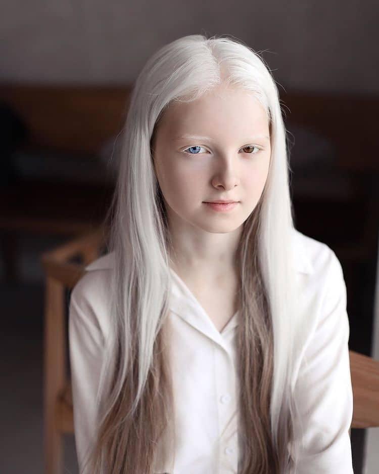Портрети кои ја истакнуваат уникатната убавина на една девојка со албинизам и хетерохромија
