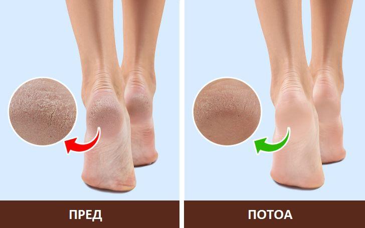 Зошто треба да носите чорапи ноќе?