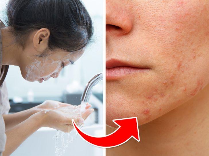 7 грешки во негата на кожата што може да ви создадат акни