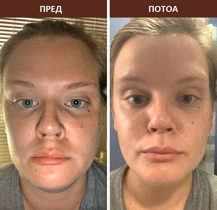 6 начини на кои ролерот за лице може да ја трансформира вашата кожа